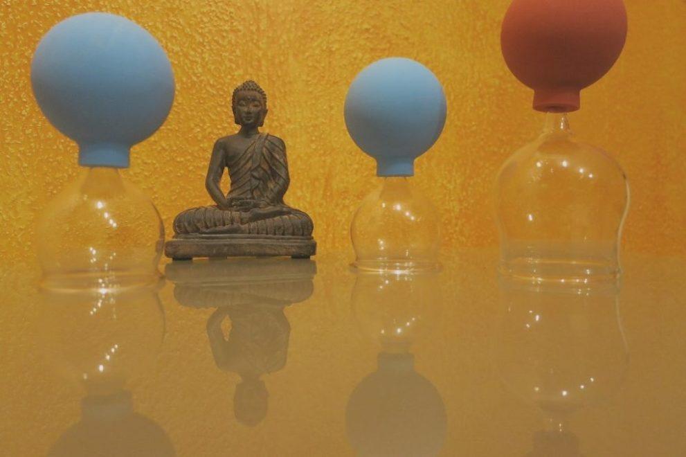 Gesundheitspraxis Oberfranken: Die Buddha Skulptur sitzt zwischen den Schröpfgläsern